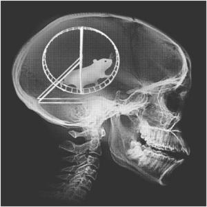 My last cranial MRI. This explains a lot. I wish I'd known sooner.